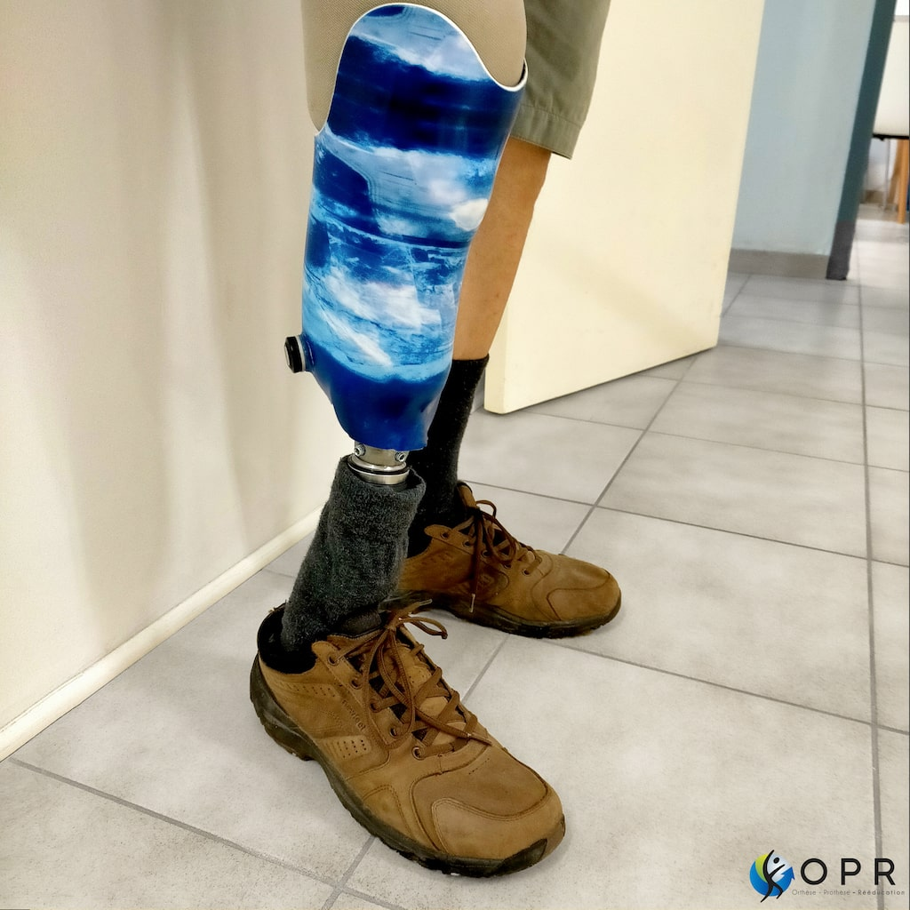 Prothèse tibiale au motif océan !