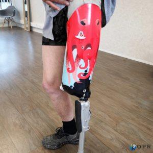 prothèse de cuisse persnallisée, légère en carbone avec un motif personnalisé pieuvre en bretagne a rennes et en normandie à avranches dans la manche et saint-lo