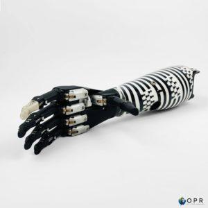 prothèse transradiale de bras personnalisée avec motif bretagne et main myoélectrique i-limb de chez ossur en bretagne a rennes et en normandie a saint lo et a avranches
