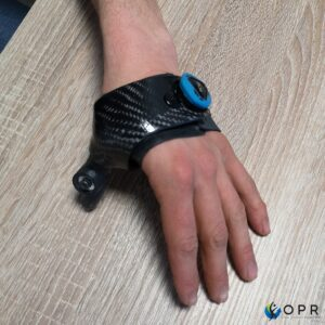 Réalisation pour un patient amputé d'un pouce, d'une prothèse avec phalange articulée Réalisée en impression 3D avec système de fixation BOA